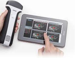 asus smartphone ultrasound probe for sale